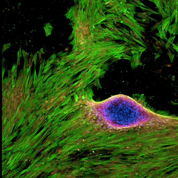 aSMA+ (green) VICs express RUNX2 (red) in osteogenic media. 2019, M Schroeder, Honorable Mention.