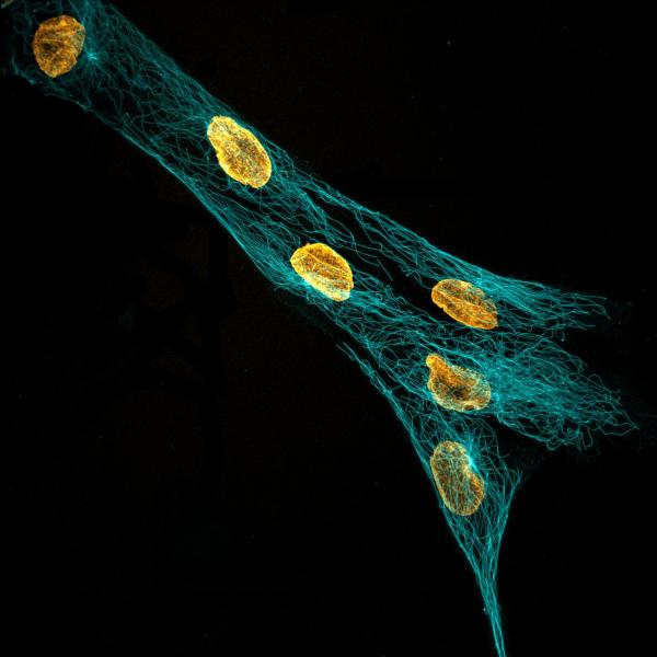 hMSC tubulin & nuclei visualized with increased clarity via expansion microscopy. 2019, V Rao, 2nd Place.