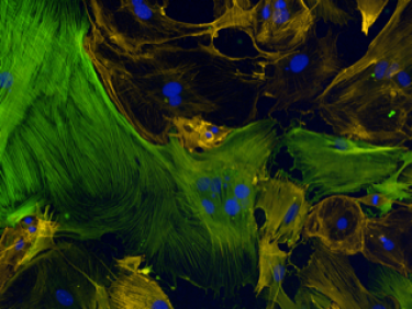 mouse cardiac fibroblasts stained with alpha smooth muscle actin in green and phallodin in orange