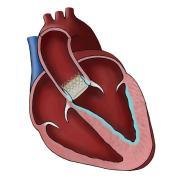 TAVR Heart