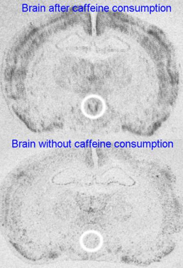 Drinking caffeine during adolescence increases the activity of the hypothalamus (encircled). This a brain region that contains nerve cells that respond to stressors and/or physiological changes. The study finds that the increased activity of this brain area is associated with increased anxiety, even after caffeine drinking has been stopped. Image courtesy of Ryan Bachtell.
