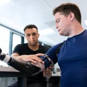 A man with a prosthetic arm