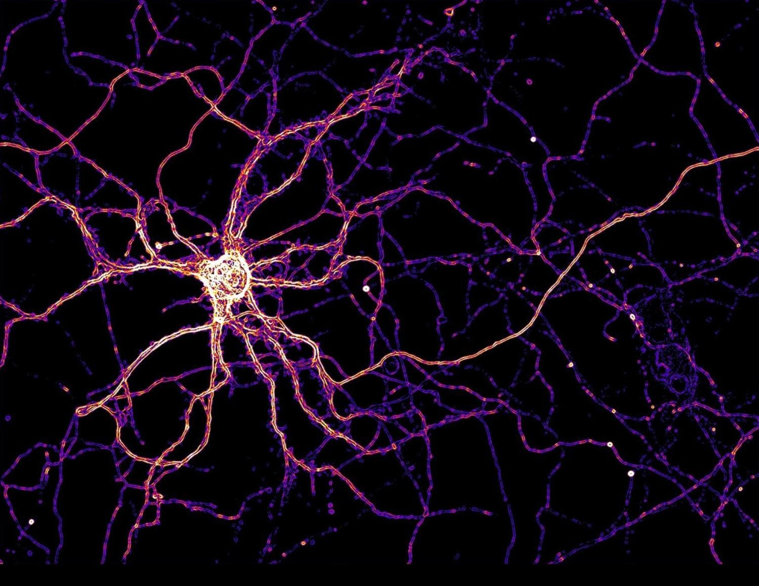 Hippocampal neurons use zinc as a neurotransmitter, but it is difficult to see zinc dynamics in cells. To overcome this challenge, primary hippocampal neurons can be genetically modified to express a fluorescent zinc sensor to measure zinc dynamics in real time. The image shown here is an example of one such modified neuron colored to show zinc sensor expression levels.