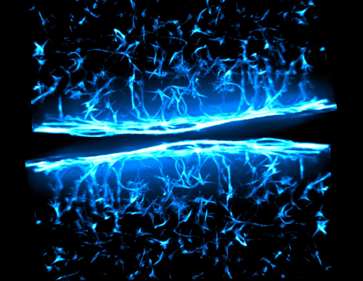 Understanding why fibrosis occurs is essential for creating drug therapies. To this end, researchers study specific heart valve cells called fibroblasts that are grown in 3D supportive matrix that mimic aspects of native tissue to probe cell response in disease-like scenarios. Here we see fibroblasts within a 3D gel. Various tones of blue mark the individual cell nuclei and their cytoskeletal components.