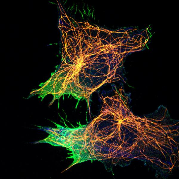 Cell migration is a complex process that is not entirely understood and is very relevant to cancer. Investigators are now beginning to unravel this mechanism through the identification and observation of proteins specific to this process. Here, the researchers are investigating the involvement of microtubules (flexible polymers that promote cell shape, shown in Orange) to the aggregation of specific cell migration proteins (Green).