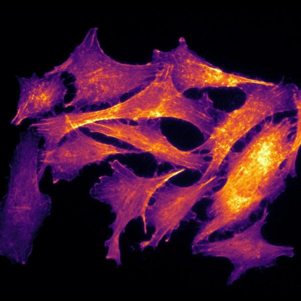 Actin, a common protein found in cells, often forms microfilaments within cells. These filaments play a major role in cellular function such as cell shape and migration, and they can be an indicator of overall cell health. Here, the actin filaments have been fluorescently labeled, with the resulting image false-colored using a heat map. Warmer colors reflect the presence of actin stress fibers, which is indicative of poor cellular health.