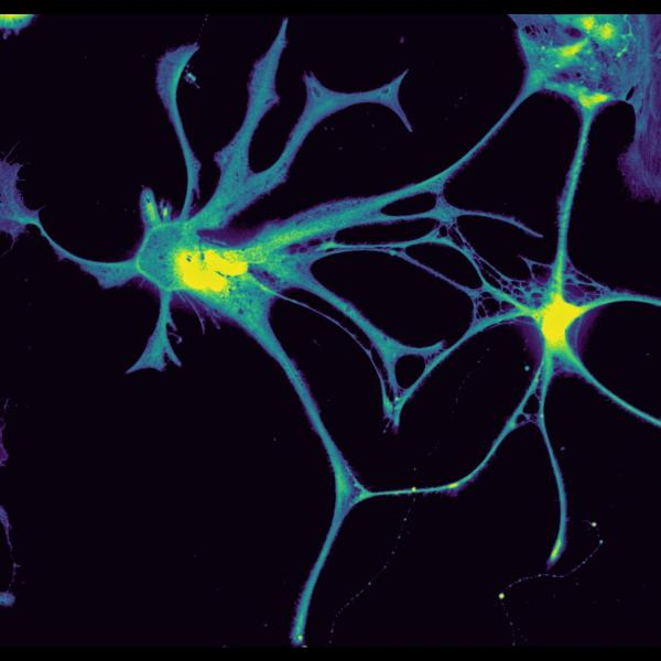 The central nervous system is extremely complex and involves many cell types that interact with each other. Glial cells have a major impact on proper neuronal function by secreting signaling molecules and recycling neurotransmitters, amongst others. This image was captured as part of an investigation of proper neuronal function and shows the presence of more fluorescent dye in the nucleus (Yellow) compared to rest of the cell (Green to Purple).