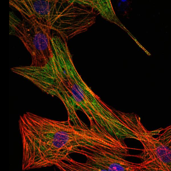 Specific disease-inducing mutations can be studied on the molecular and cellular level through a viral expression system. Here, the individual sarcomere bundles of cardiac muscle cells (myocytes) are shown in red. Myocytes expressing the disease-causing protein (shown in green) can be distinguished from those that have not been infected. The nuclei are stained in blue.