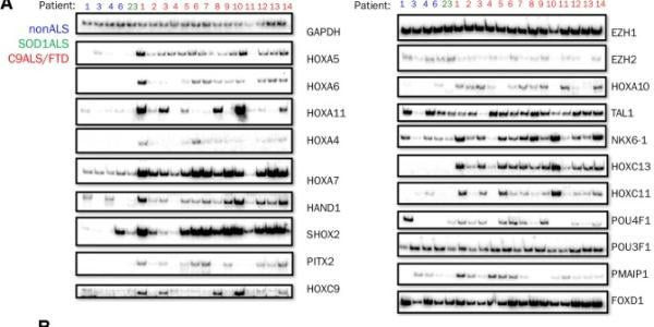 Gene expression changes in cerebellum from ALS/FTD patients carrying the C9 repeat expansion