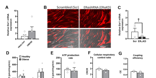 7A-L. Knockdown of ERα in human myotubes from healthy and obese insulinresistant women minimally affects basal O2 consumption and ATP production rate.