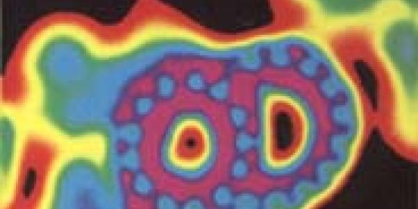 High voltage EM image of axoneme