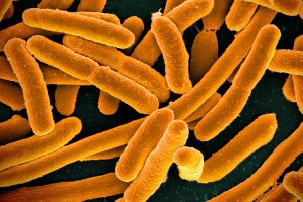 Escheria coli