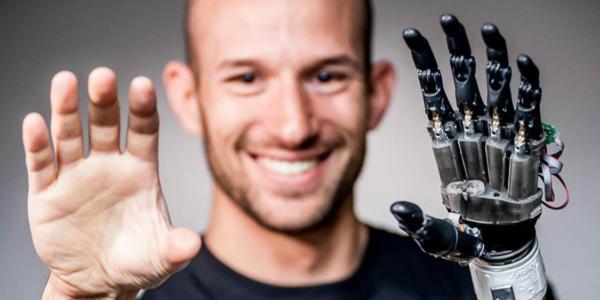 Jacob segil, prosthetic device