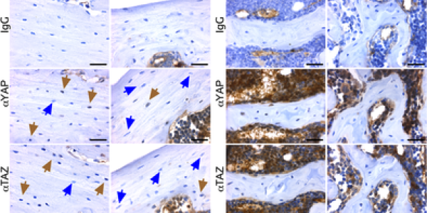 8kb‐DMP1‐Cre selectively ablated YAP/TAZ expression from osteocytes
