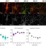 Expression and localization of Zn2+ transporter ZnT3 in cultured neurons by immunofuorescence.