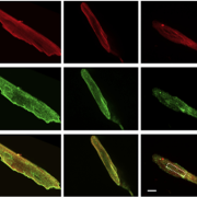 images of adult mouse cardiomyocytes