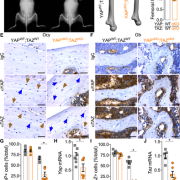 8 kb‐DMP1‐Cre selectively ablated YAP/TAZ expression from osteocytes