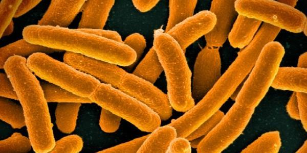 Picture of ecoli