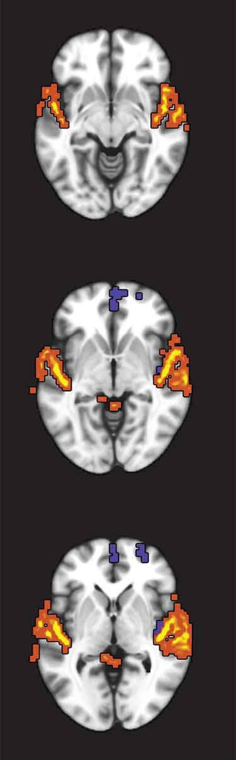 three brain images