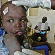 blind boy in South Sudan