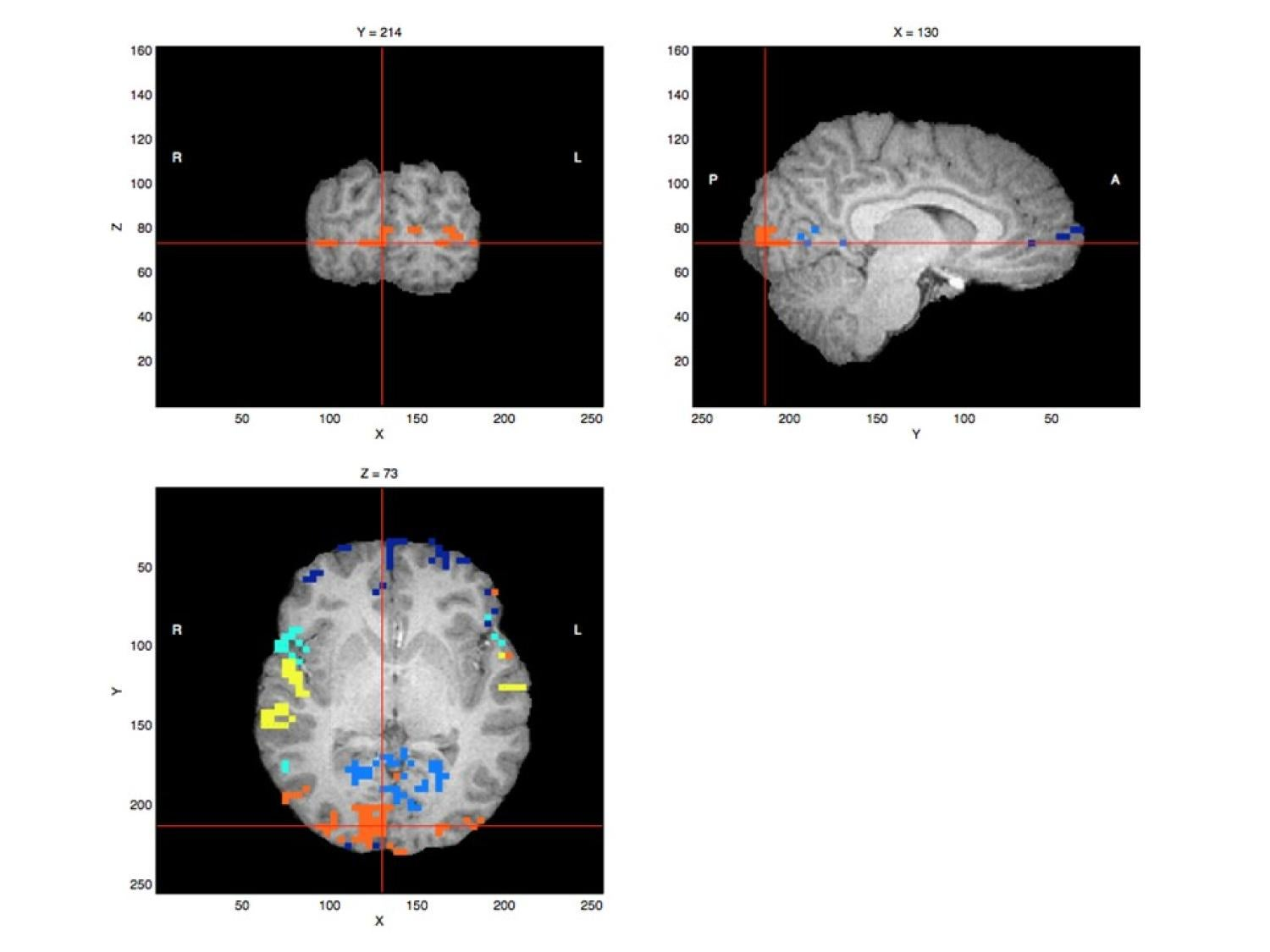 Functional MRI (fMRI) images that measures brain activity.