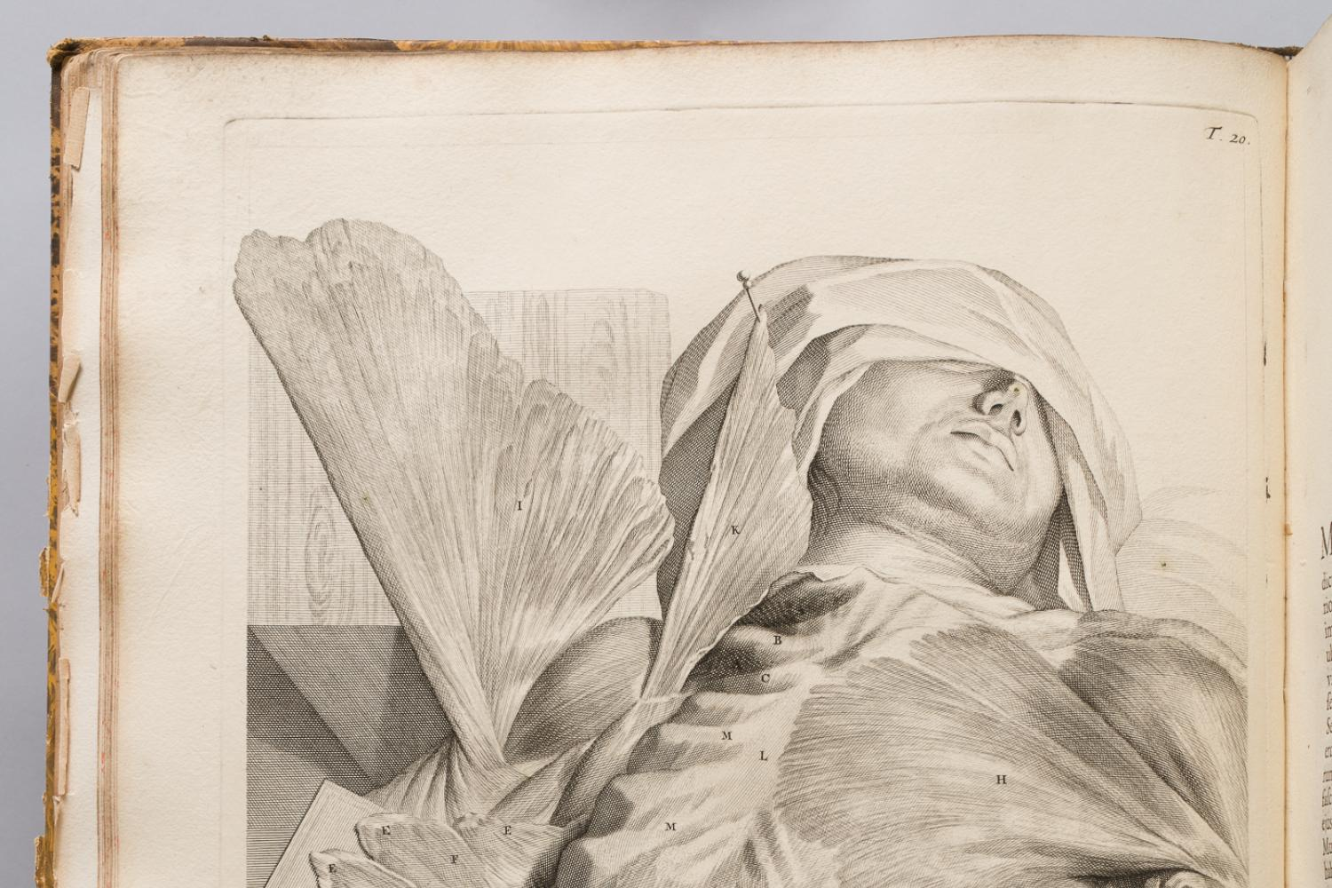 A drawing on a human torso from a medical text