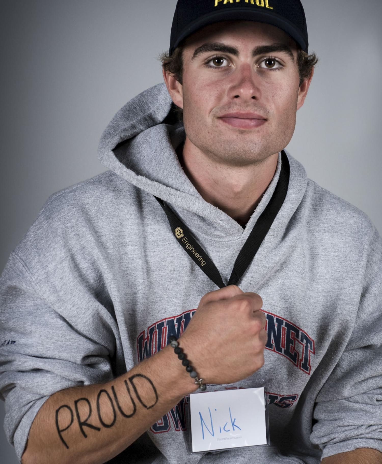 Male student with writing on arm