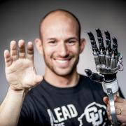 Jacob Sigel with prosthetic hand