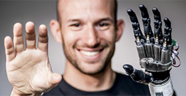 Jacob Siegel holding prosthetic hand