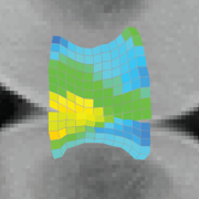 Corey Neu CU Boulder functional imaging technique