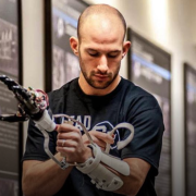 Jacob Segil with prosthetic in a hallway.