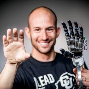 Dr. Segil with prosthetic hand