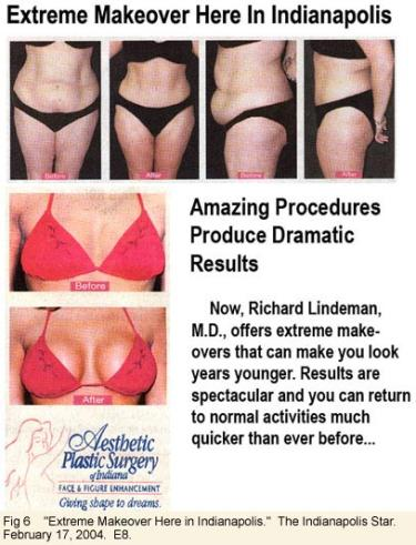 Body transformation advertisement