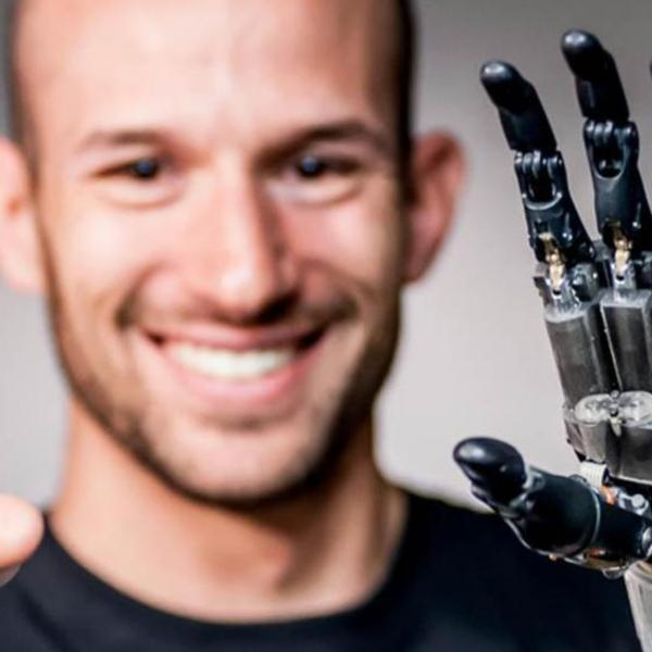 Man with a bionic hand