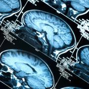 AI CPR Brain Scan Image