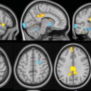 An MRI image showing the multivariate brain pattern that predicts fibromyalgia status on the basis of brain activation during multisensory stimulation.