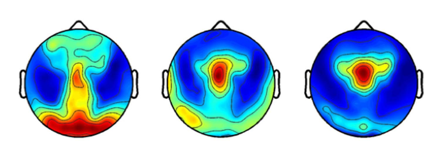 Topographical maps of sleep electroencephalography power distribution in  preschool children (red = maxima, blue = minima)