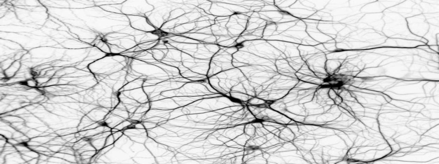 Artistic rendering of neurons