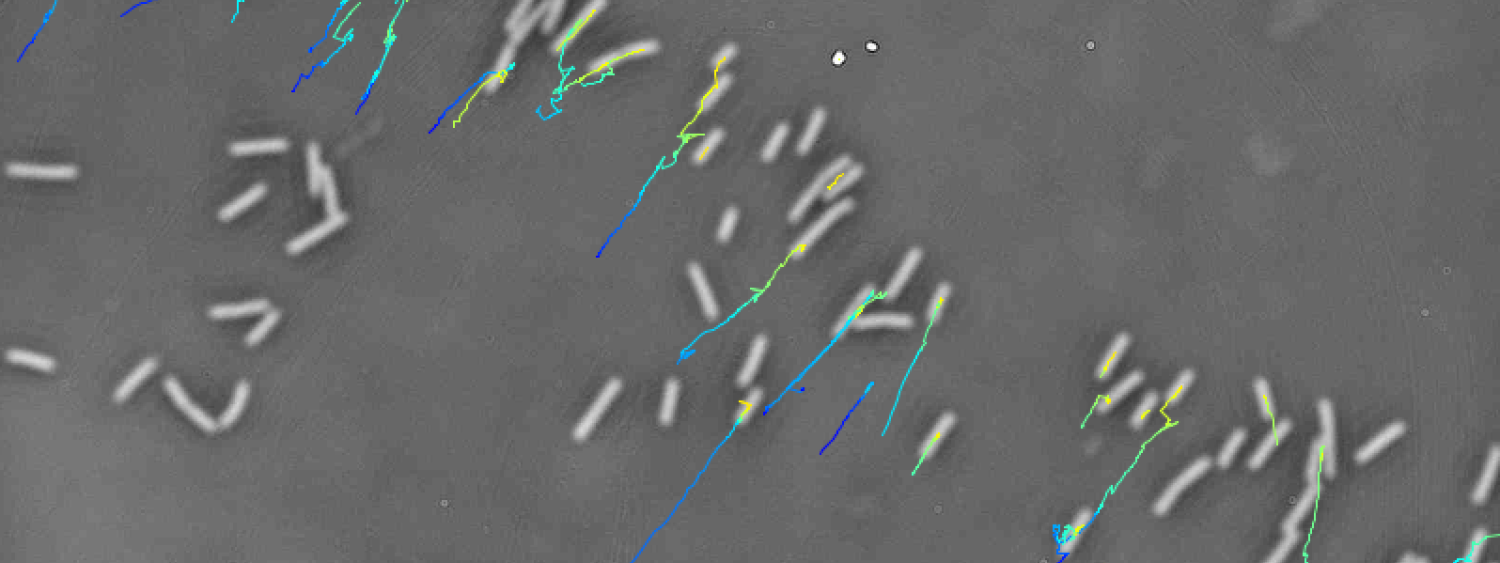 Bacteria swimming in cervical mucus