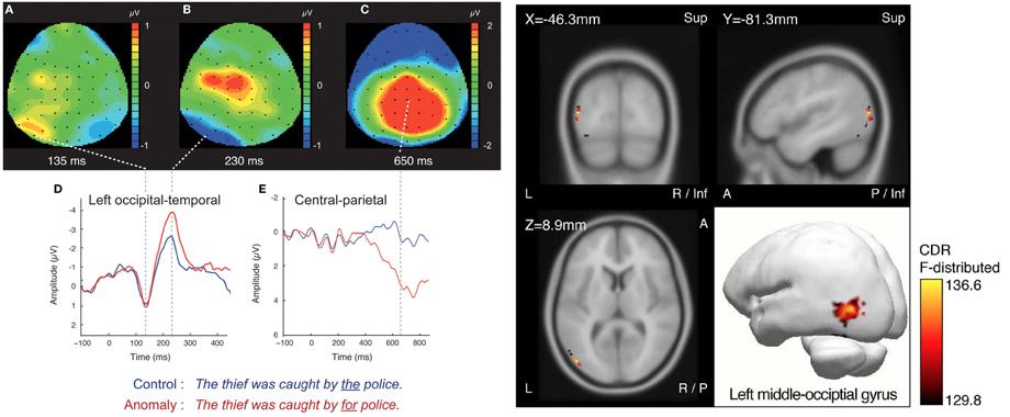 EEG Results