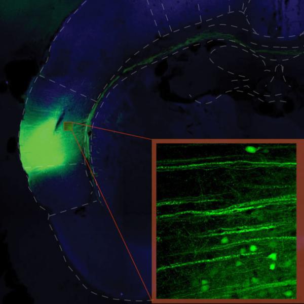 insular cortex image