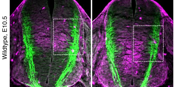 Netrin1/DCC signaling promotes neuronal migration in the dorsal spinal cord