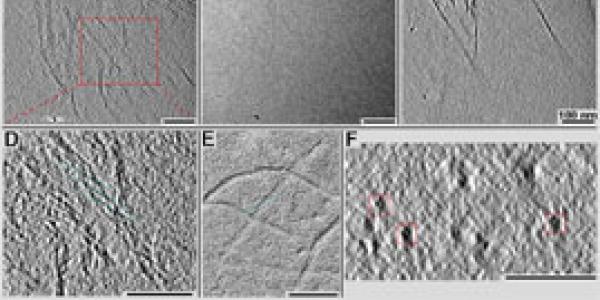 Electron micrograph of intermediate filaments.