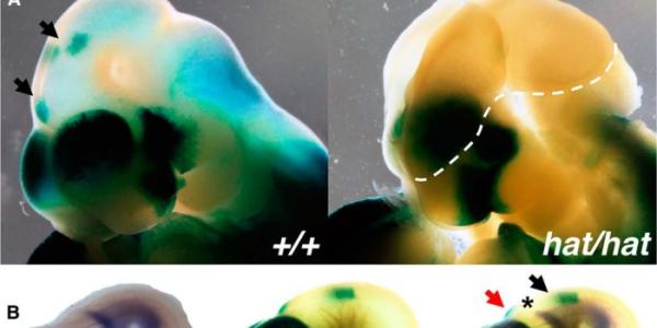 GCN5 acetyltransferase activity is required for RA signaling in the developing forebrain.