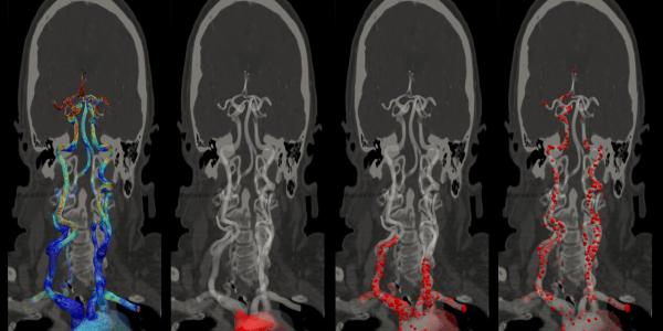 emboli in arterial-brain network