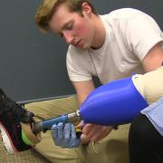 Max Armstrong working with a person who has a prosthetic leg.