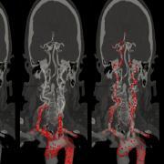 emboli in arterial-brain network