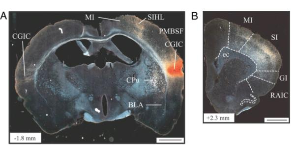 brain slice image