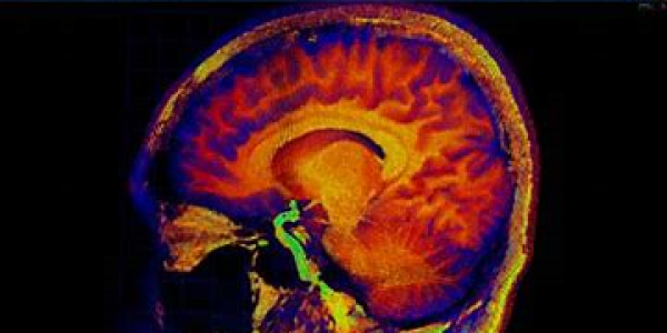 rainbow image of brain