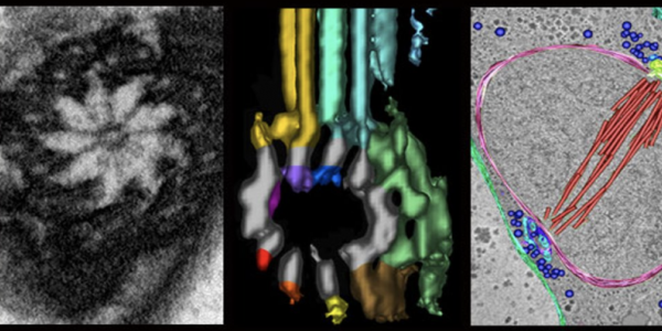 Boulder Electron Microscopy Services Core Facility (RRID:SCR_001432)